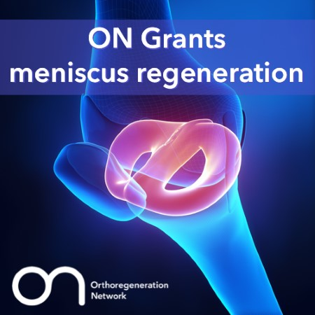 Two ON Foundation Grant opportunities on Meniscus